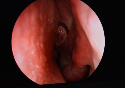 Functional Endoscopic Sinus Surgery